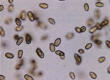 cellule di Fibrocapsa Japonica 1